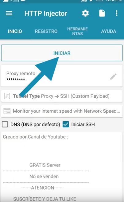 descargar ehis servidores avantel colombia 2019